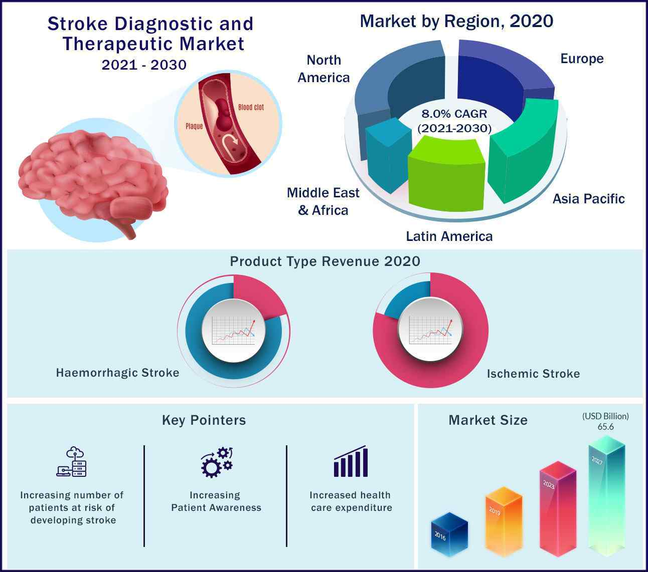 Global Stroke Diagnostic and Therapeutic Market 2021 to 2030